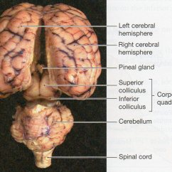 Sheep Brain Superior View Diagram Audi A4 B6 Airbag Wiring Physiological Psychology