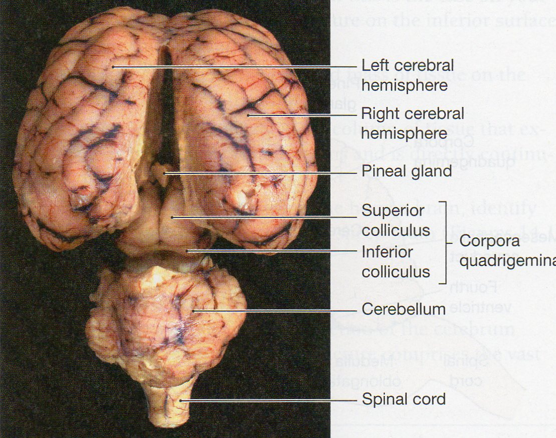 lateral view sheep brain diagram carling technologies toggle switch wiring physiological psychology