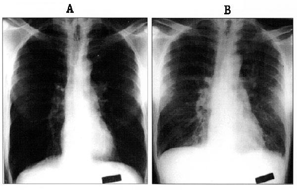 Figure 1 - Bayou Virus-Associated Hantavirus Pulmonary Syndrome in ...