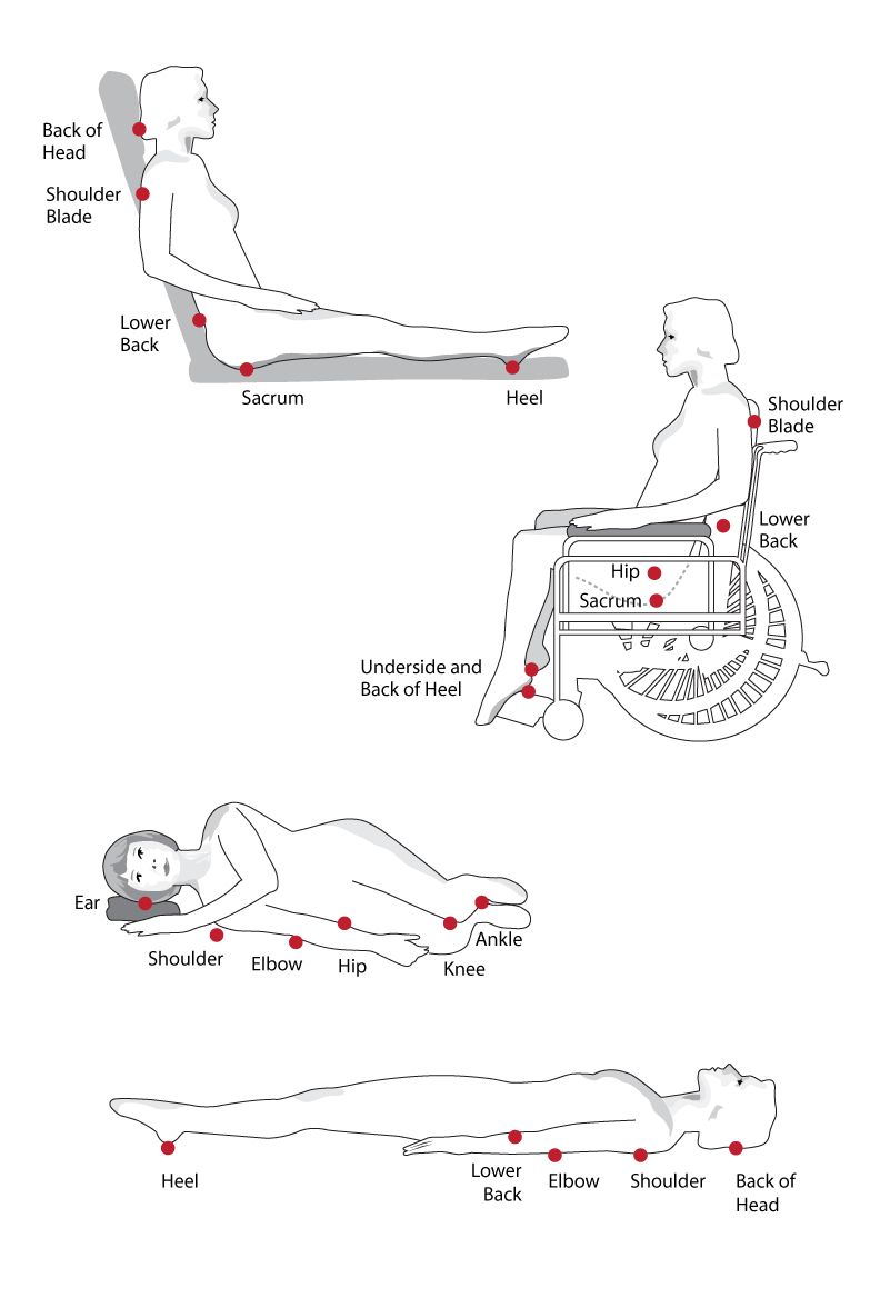 [DIAGRAM] Human Body Diagram Pressure Ulcer FULL Version
