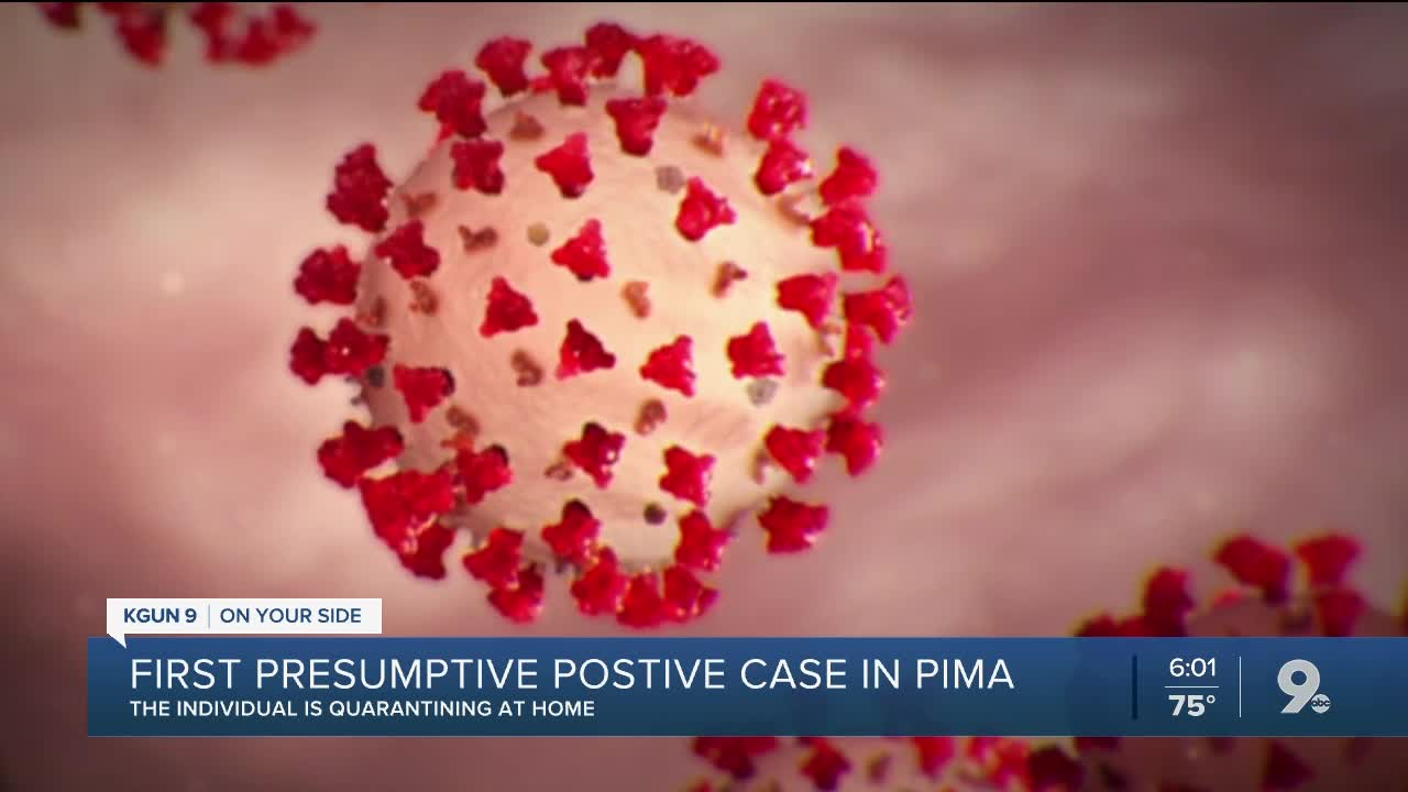 Presumptive positive case of COVID-19 in Pima County
