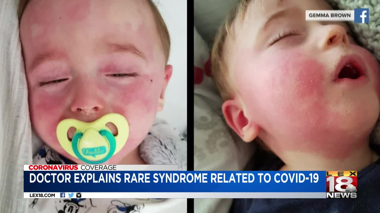 Doctor explains rare syndrome related to COVID-19
