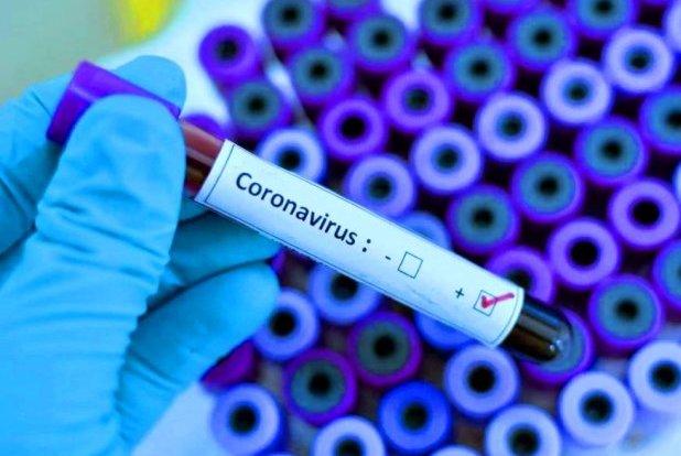 В Україну привезли тест-систему для виявлення нового коронавірусу