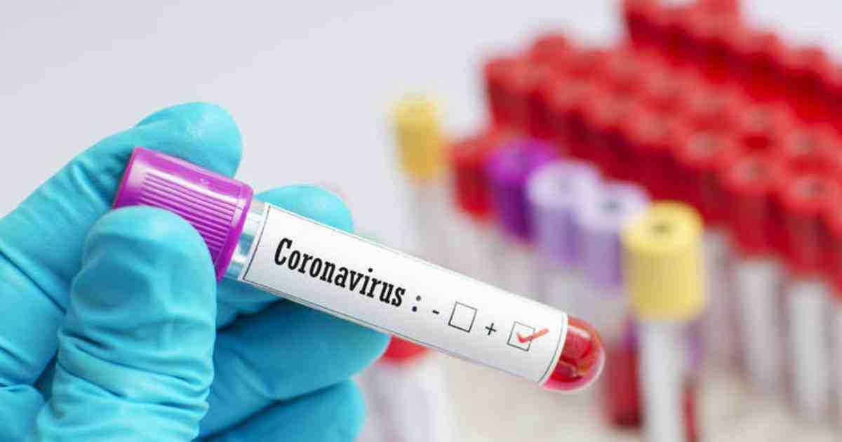За добу на Харківщині 50 нових випадків COVID-19