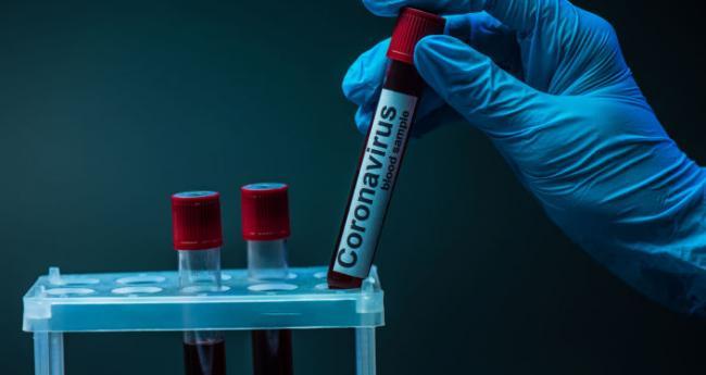 За добу на Харківщині діагностували 12 випадків коронавірусу