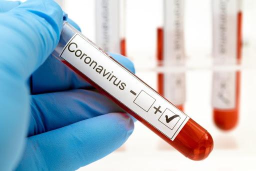 За добу на Харківщині 42 нових випадки коронавірусу