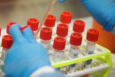 лаборатории по коронавирусу