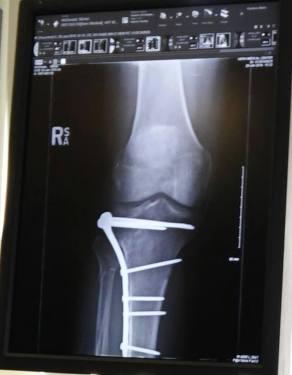 my leg xrays 3-24-2016