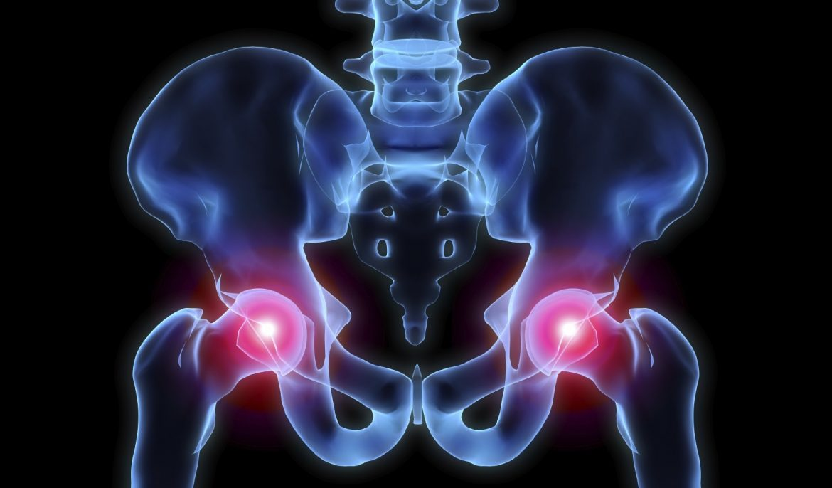 hip pain treatments Xcell Medical Elyria