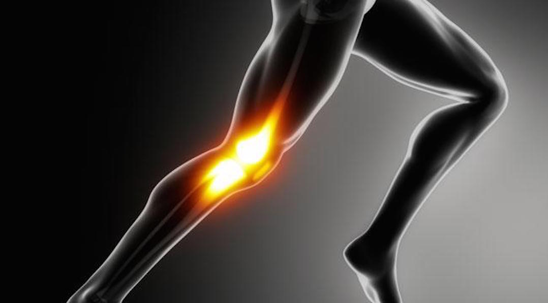 knee pain regenerative Xcell Medical Elyria