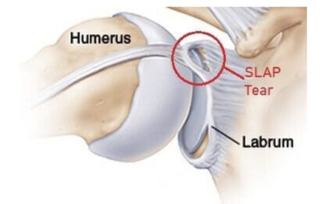shoulder labrum tear diagram