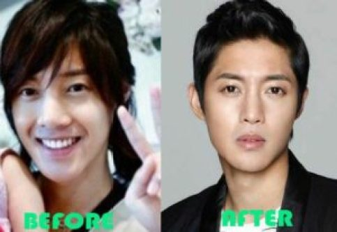 While most Korean celebrities choose to be more private about plastic surgery, here's a list of 9 Korean Actors admitting to have plastic surgery done.] - Kim Hyun Joong