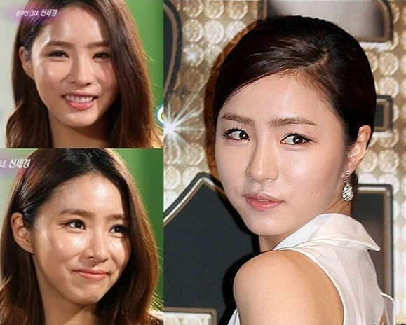 Pic 2 - Do you wanna know about Shin Se Kyung's plastic surgery?