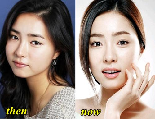 Pic 5 - Do you wanna know about Shin Se Kyung's plastic surgery?