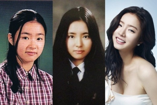 Cover - Do you wanna know about Shin Se Kyung's plastic surgery?