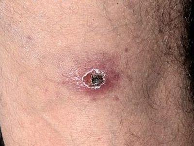 Симптомы укуса клеща у человека + фото