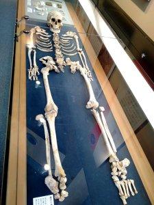 飛鳥山博物館の縄文人骨