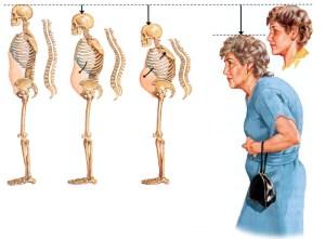 остеопороз вид женщины