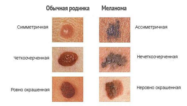 """Остеохондроз и заболевания кожи   Клиника """"Цематеб"""""""