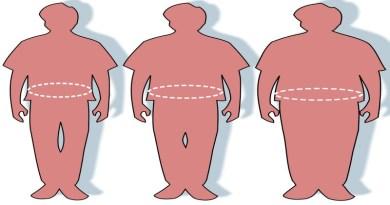 Кинезитерапия при затлъстяване