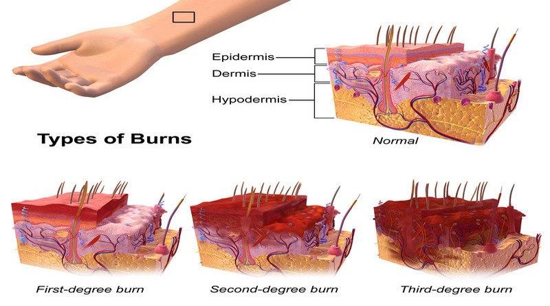 Кинезитерапия при изгаряния фази