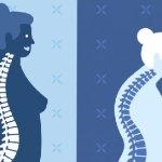 ЖИВОТ С ОСТЕОПОРОЗА - Виртуален център по остеопороза