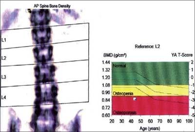скрининг на остеопороза