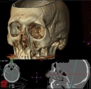 cranium-fracture