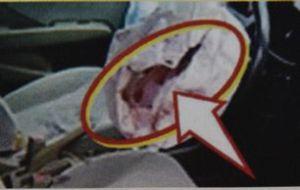 交通事故でエアバックが異常破裂した事例