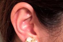 耳たぶ 粉瘤