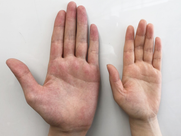 手の小さい人
