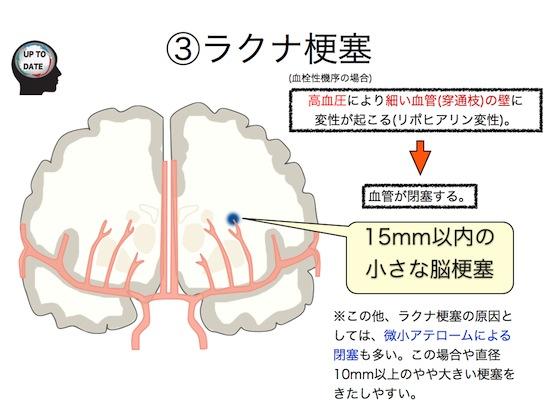 脳梗塞の分類.008