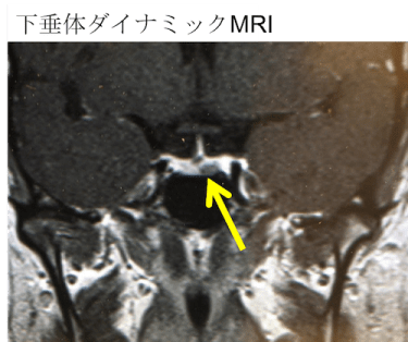 microadenoma mri findings
