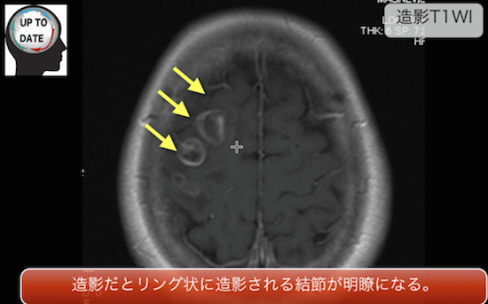 brainmeta1