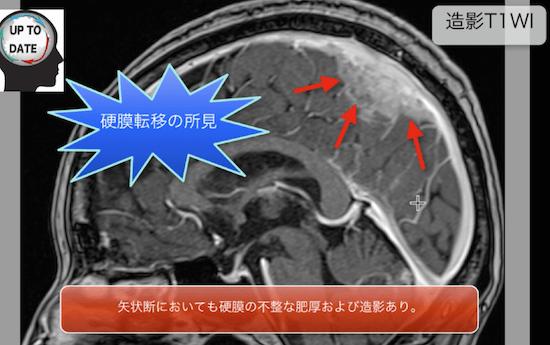 brainmeta4