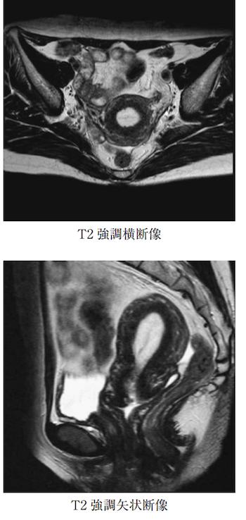 central fibrous core