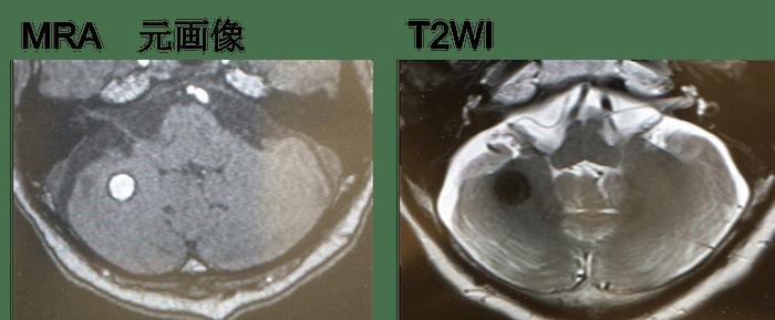 cerebral hemorrhage mri findings1