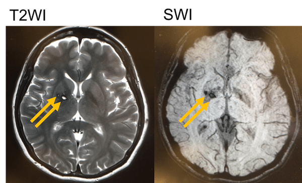 chronic cerebral hemorrhage MRI findings