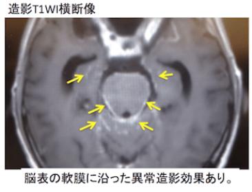eptomeningeal metastasis3
