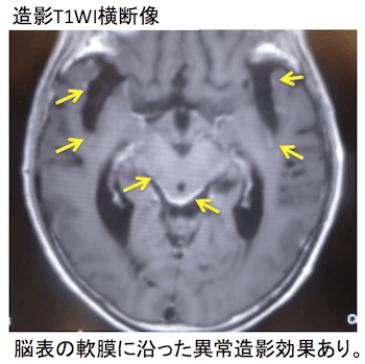 eptomeningeal metastasis4