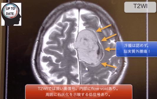 meningioma2