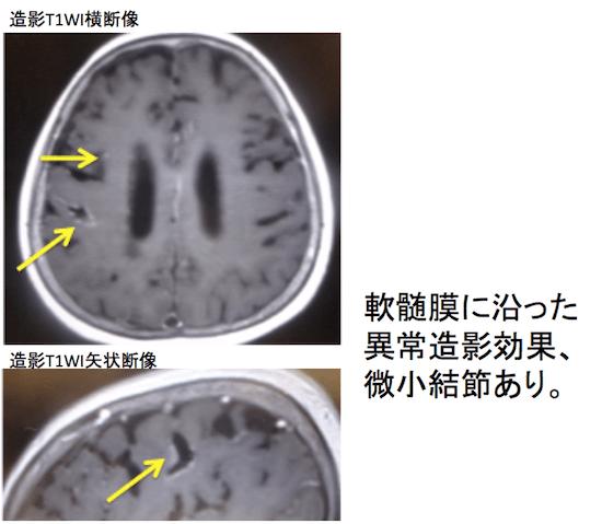 meningitis carcinomatosa