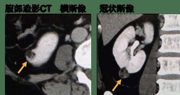 renal aml CT findings2