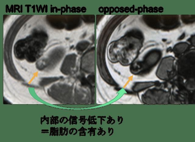 renal aml mri findings1