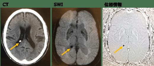 SWIで石灰化のMRI画像