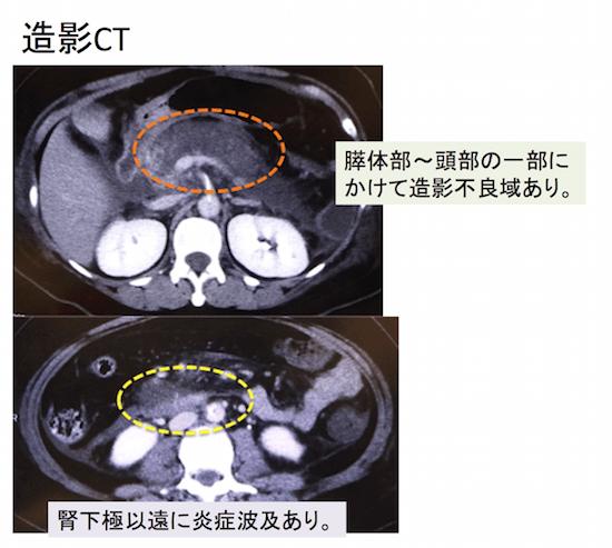 acutepancreatitis3
