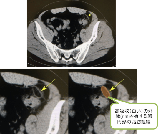 epiploic appendagitis ct findings1