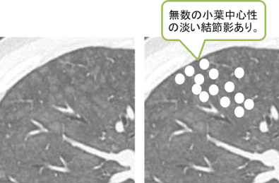 CT findings of Hypersensitivity Pneumonitis2