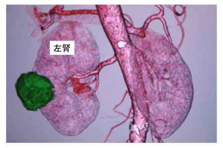 RCCdiagnosis