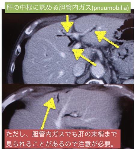 pneumobilia1